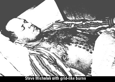 Steve Michalak in Hospital